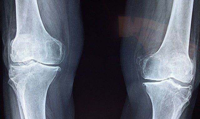 आमवात(Rheumatoid Arthritis) के रोगियों लिए आहार & विहार
